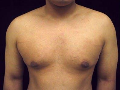 Gynecomastia Gallery - Patient 39350683 - Image 1
