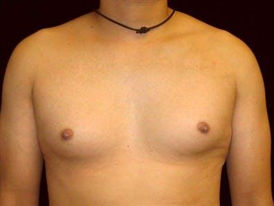 Gynecomastia Gallery - Patient 39350699 - Image 1