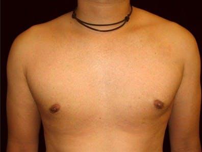 Gynecomastia Gallery - Patient 39350699 - Image 2