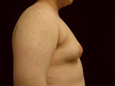 Gynecomastia Gallery - Patient 39350701 - Image 1