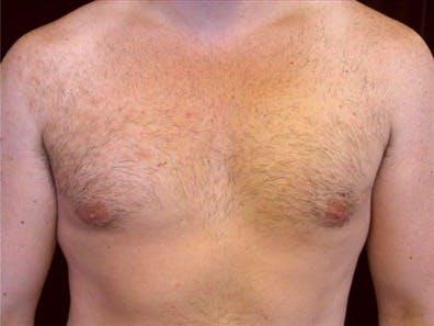 Gynecomastia Gallery - Patient 39350730 - Image 2