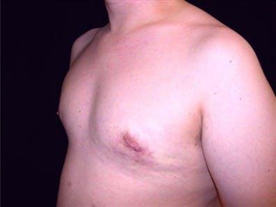 Gynecomastia Gallery - Patient 39350744 - Image 2