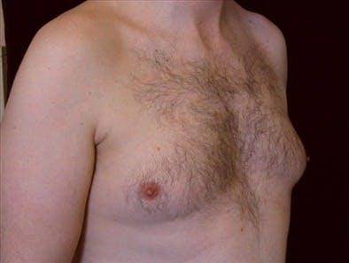 Gynecomastia Gallery - Patient 39350748 - Image 1