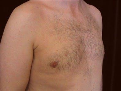 Gynecomastia Gallery - Patient 39350748 - Image 2