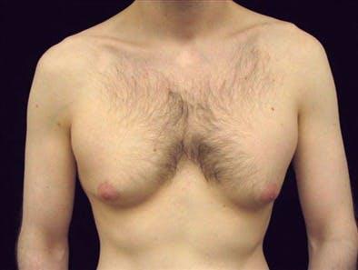 Gynecomastia Gallery - Patient 39350754 - Image 1
