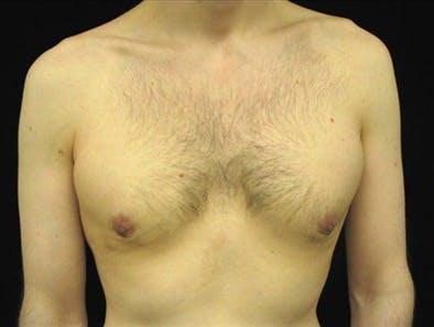 Gynecomastia Gallery - Patient 39350754 - Image 2