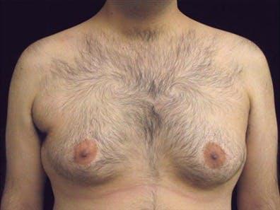 Gynecomastia Gallery - Patient 39350787 - Image 1