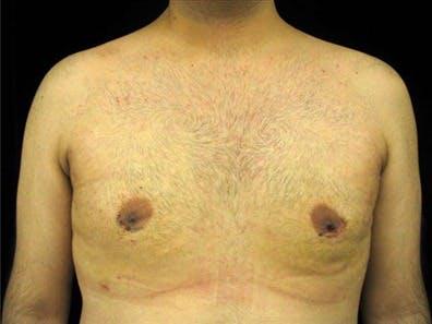 Gynecomastia Gallery - Patient 39350787 - Image 2