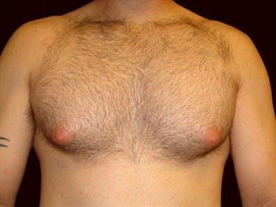 Gynecomastia Gallery - Patient 39350791 - Image 1