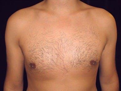 Gynecomastia Gallery - Patient 39350800 - Image 2