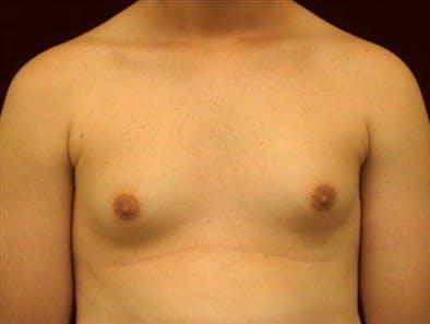 Gynecomastia Gallery - Patient 39350825 - Image 1