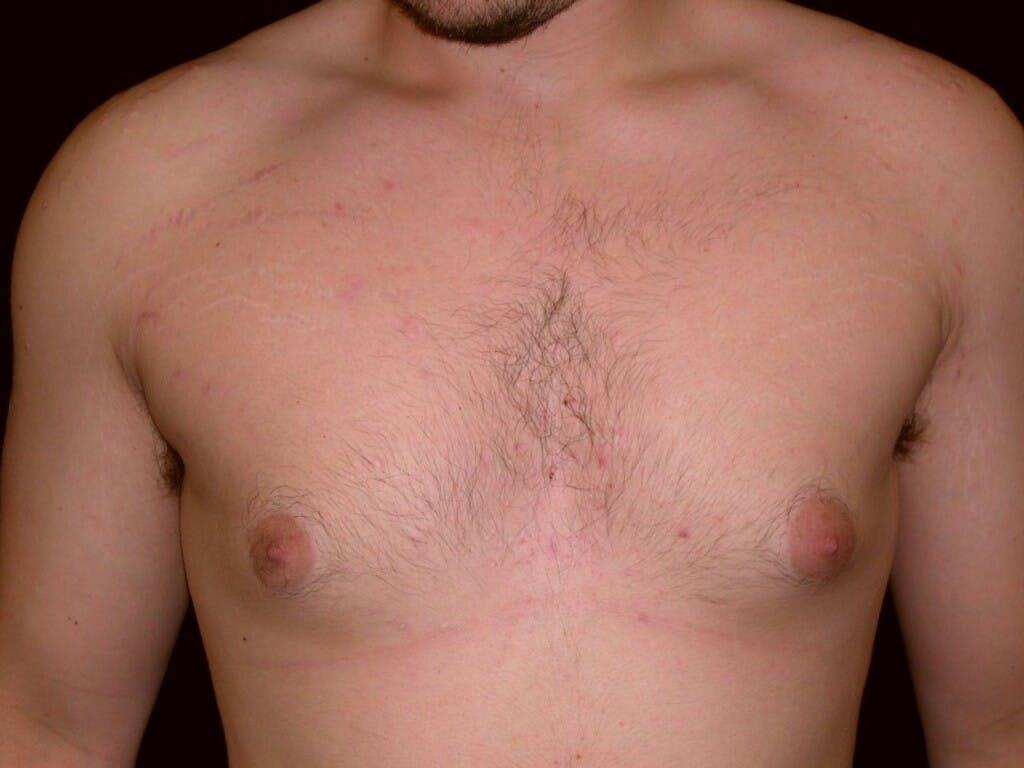 Gynecomastia Gallery - Patient 39350856 - Image 1
