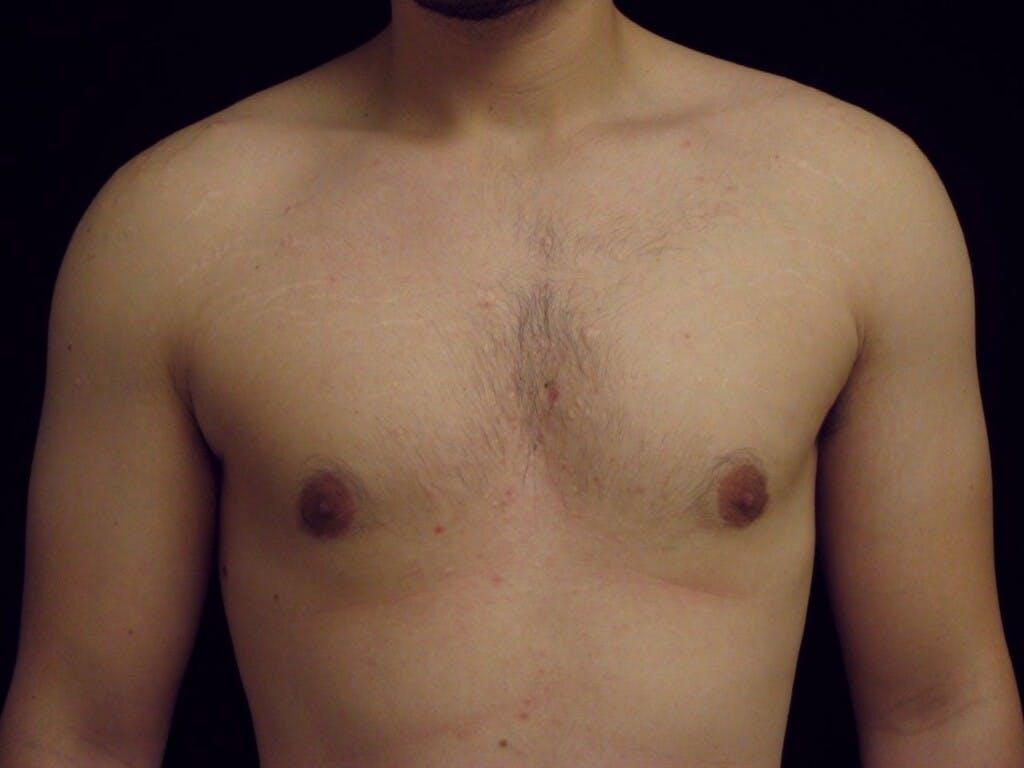 Gynecomastia Gallery - Patient 39350856 - Image 2
