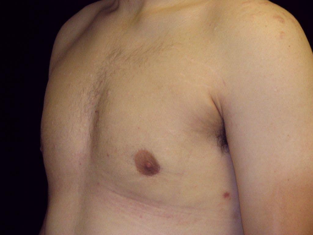 Gynecomastia Gallery - Patient 39350856 - Image 6