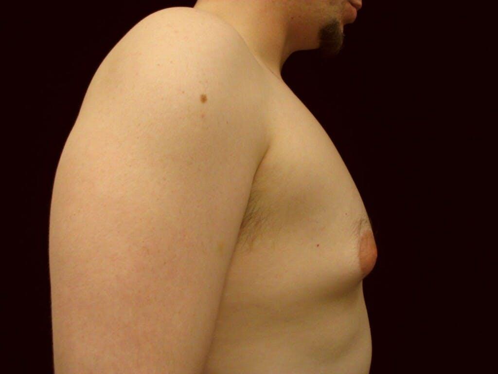 Gynecomastia Gallery - Patient 39350860 - Image 3