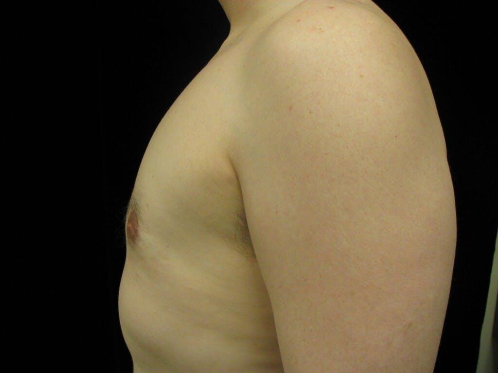 Gynecomastia Gallery - Patient 39350860 - Image 6