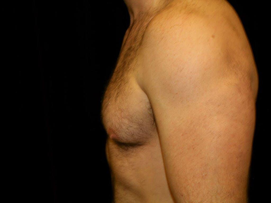 Gynecomastia Gallery - Patient 39350879 - Image 5