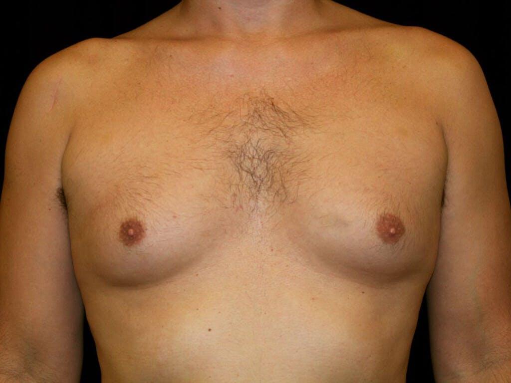 Gynecomastia Gallery - Patient 39350892 - Image 1