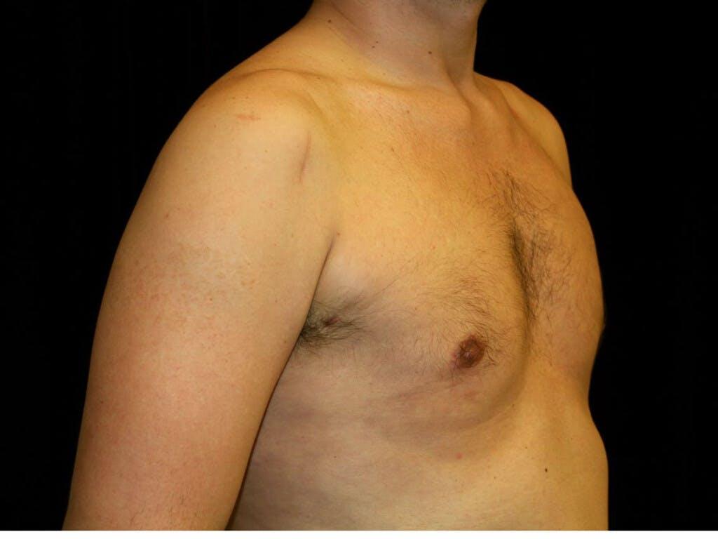 Gynecomastia Gallery - Patient 39350892 - Image 4