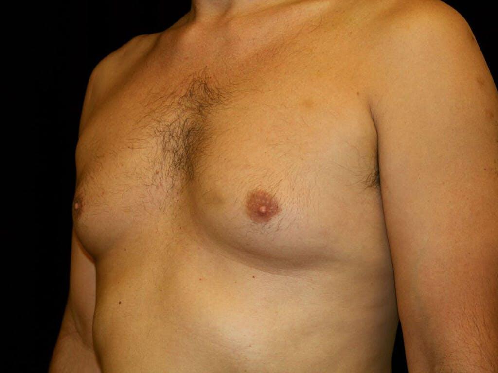 Gynecomastia Gallery - Patient 39350892 - Image 5
