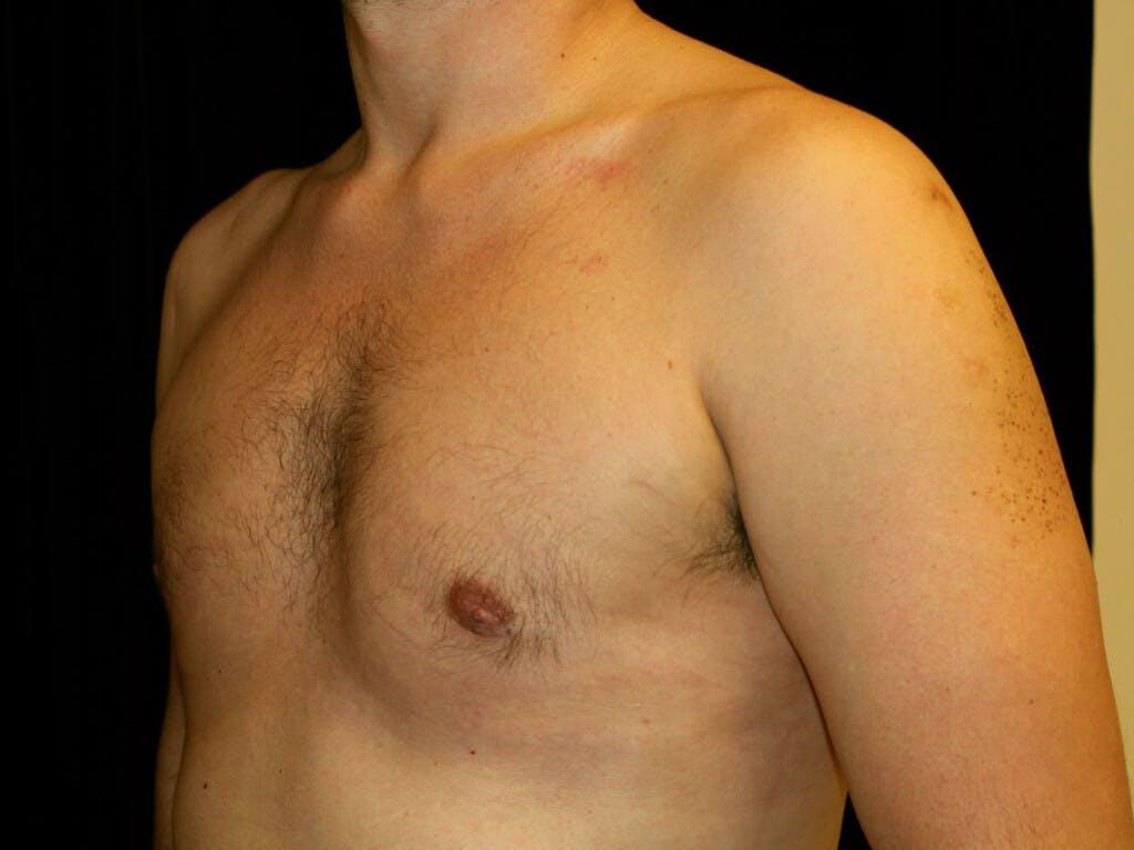 Gynecomastia Gallery - Patient 39350892 - Image 6