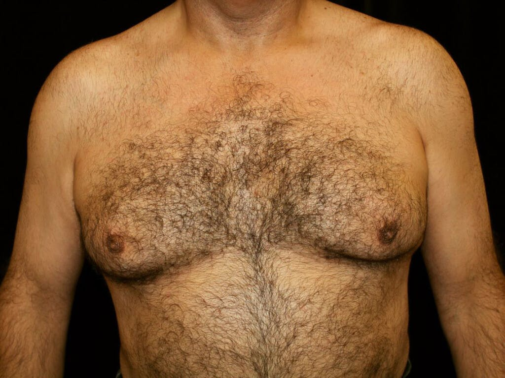 Gynecomastia Gallery - Patient 39350935 - Image 1