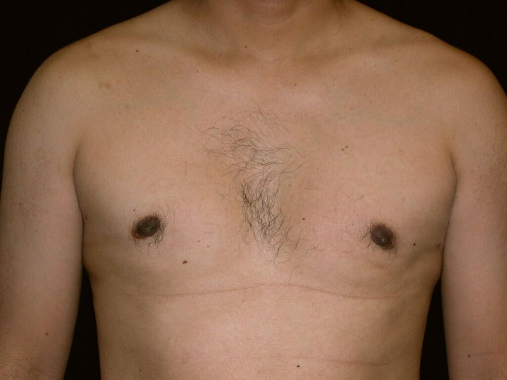 Gynecomastia Gallery - Patient 39351852 - Image 2