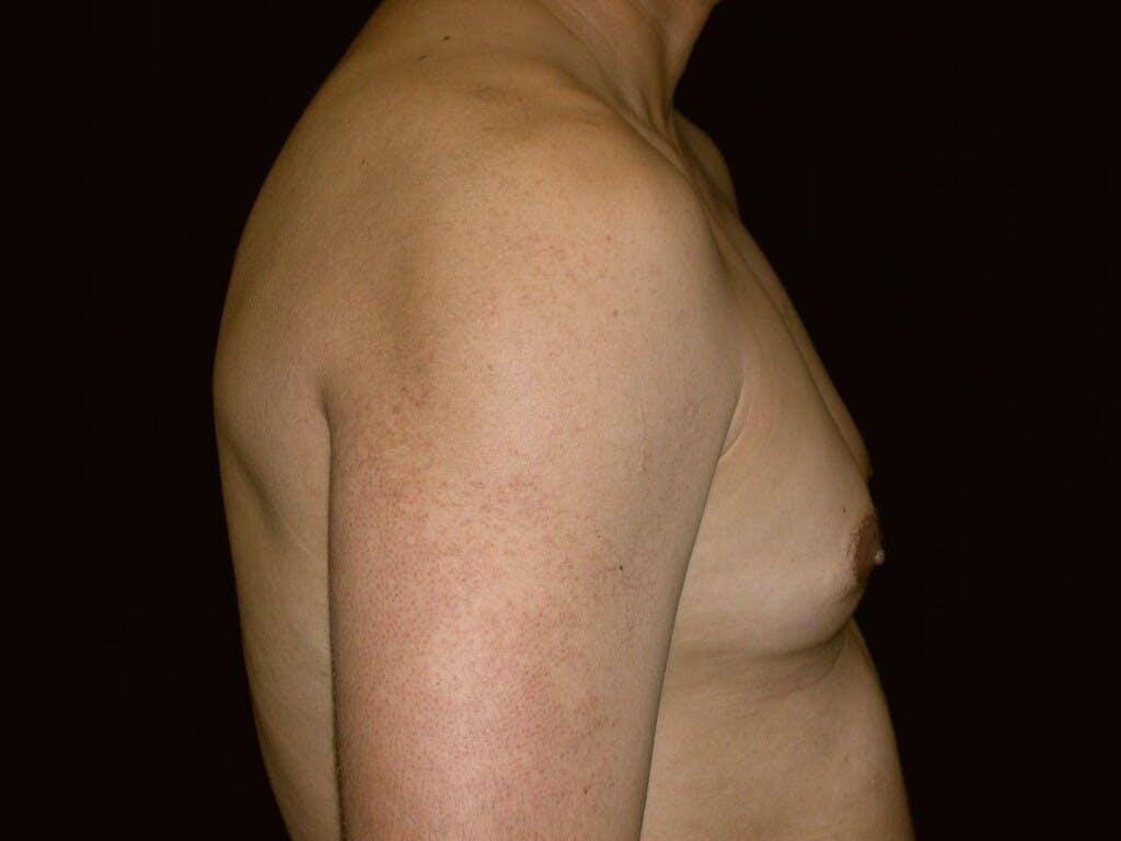 Gynecomastia Gallery - Patient 39351852 - Image 3
