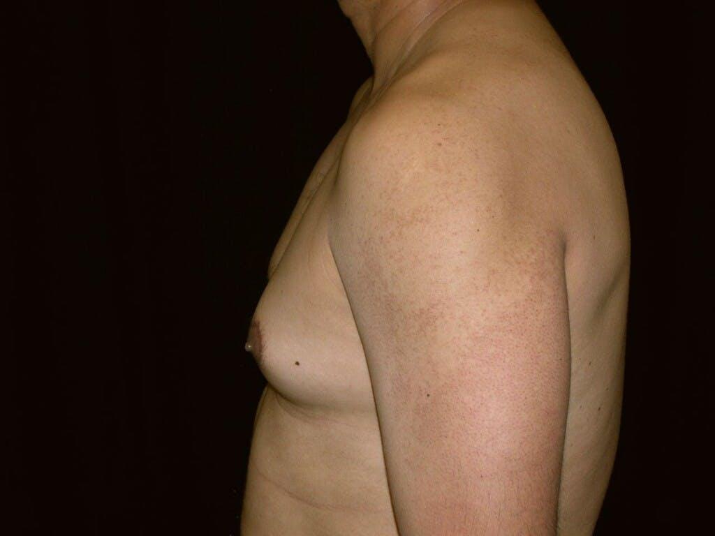 Gynecomastia Gallery - Patient 39351852 - Image 5