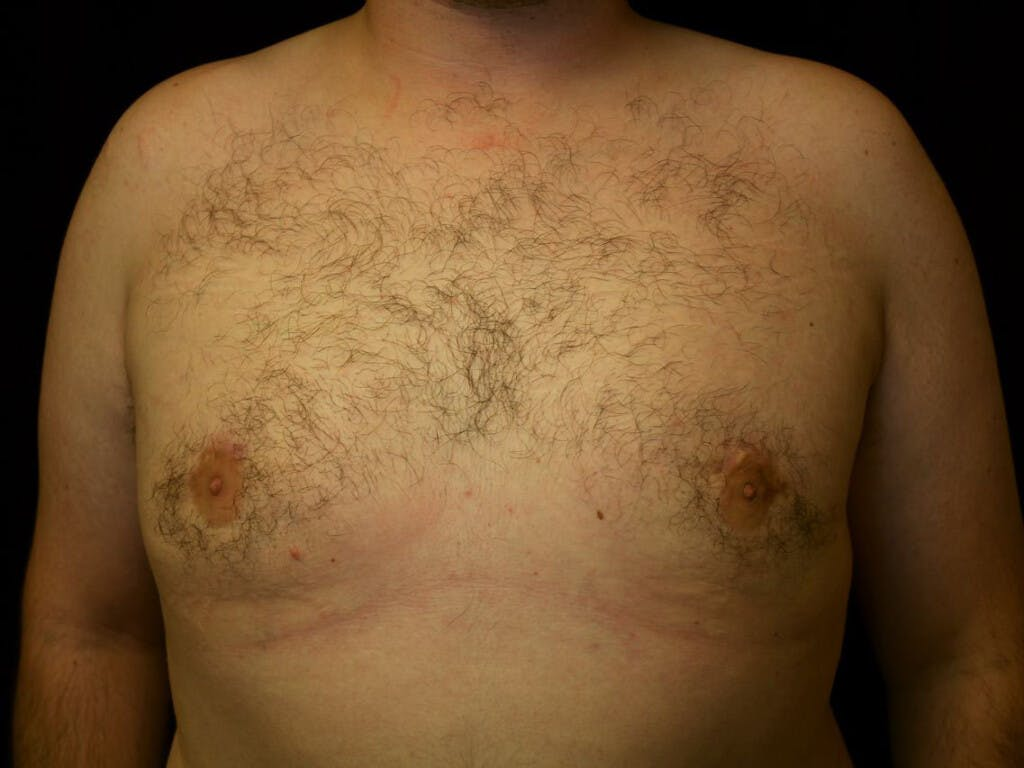 Gynecomastia Gallery - Patient 39351884 - Image 2
