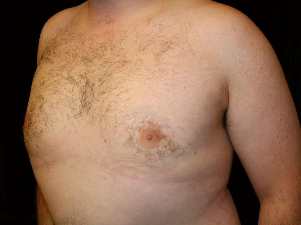 Gynecomastia Gallery - Patient 39351884 - Image 4