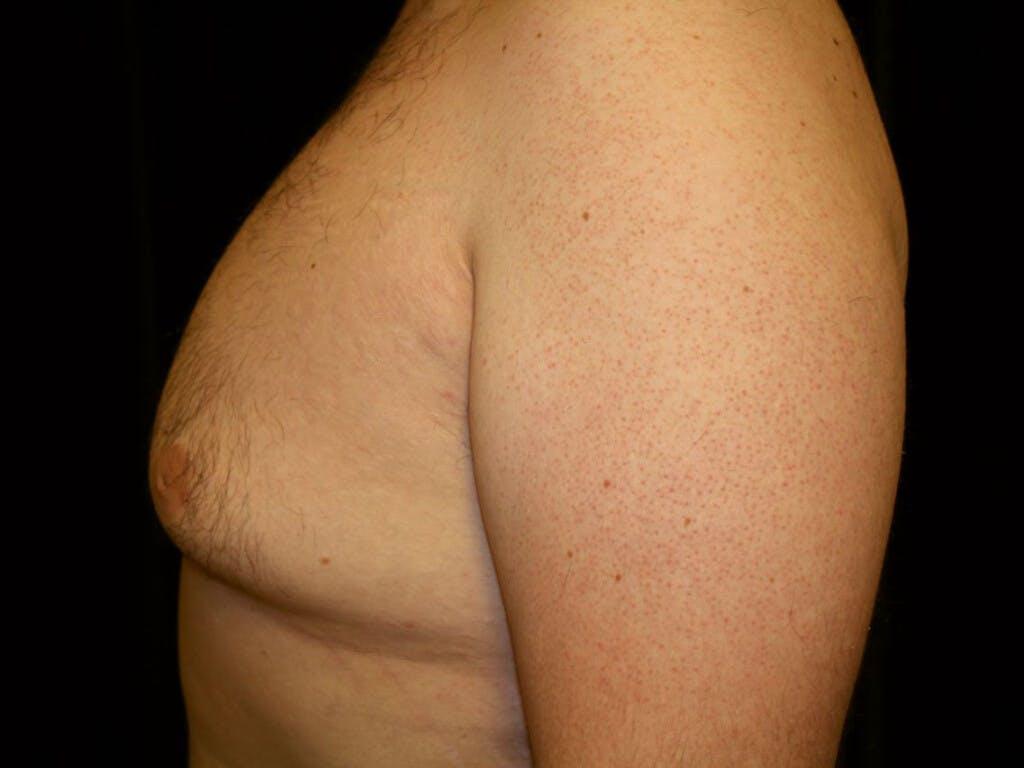 Gynecomastia Gallery - Patient 39351884 - Image 5