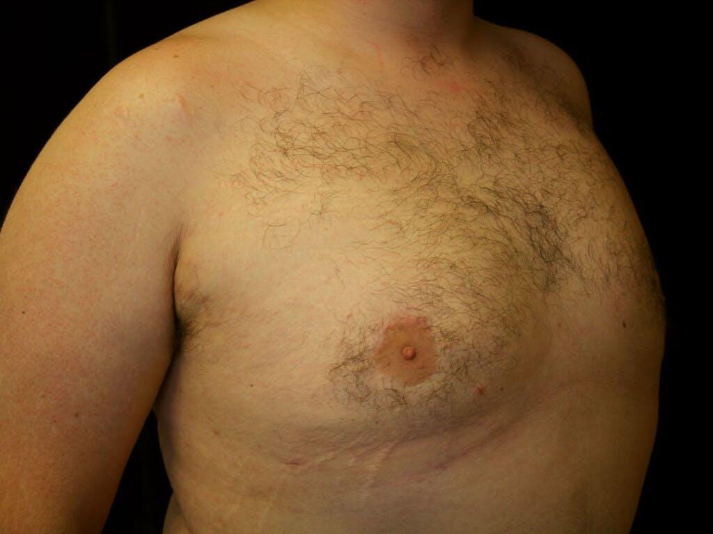 Gynecomastia Gallery - Patient 39351884 - Image 8