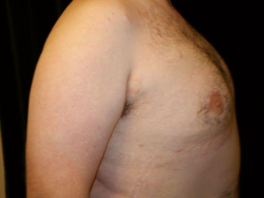 Gynecomastia Gallery - Patient 39351884 - Image 10