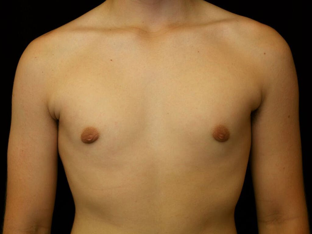 Gynecomastia Gallery - Patient 39351886 - Image 2