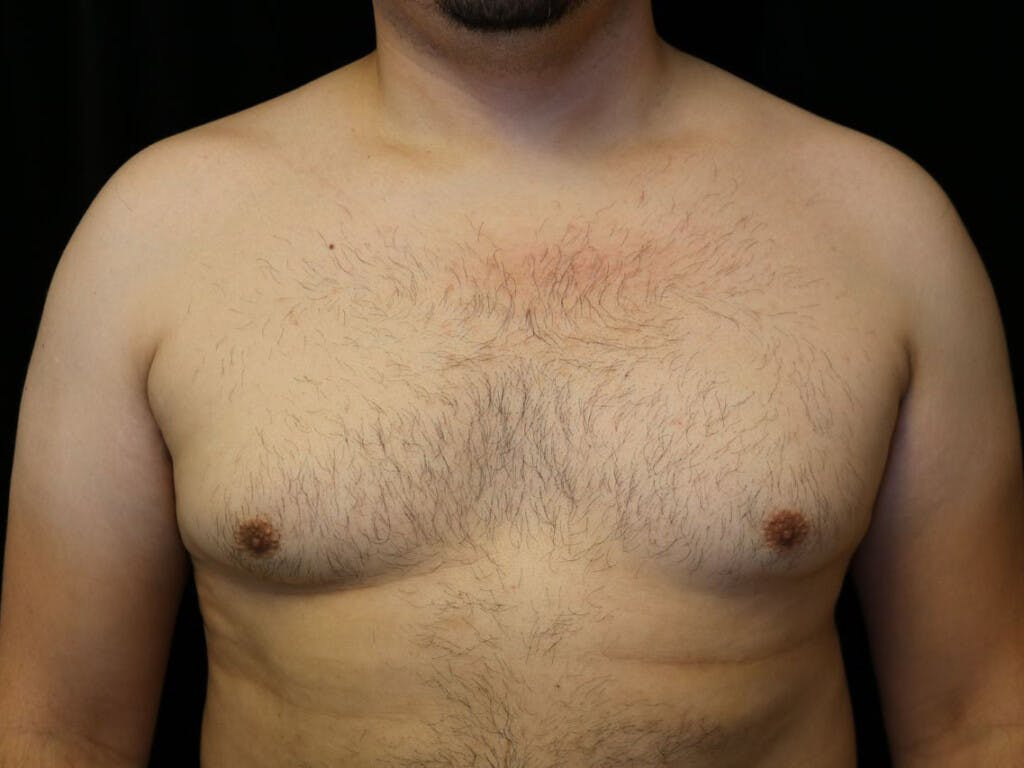 Gynecomastia Gallery - Patient 39352030 - Image 1