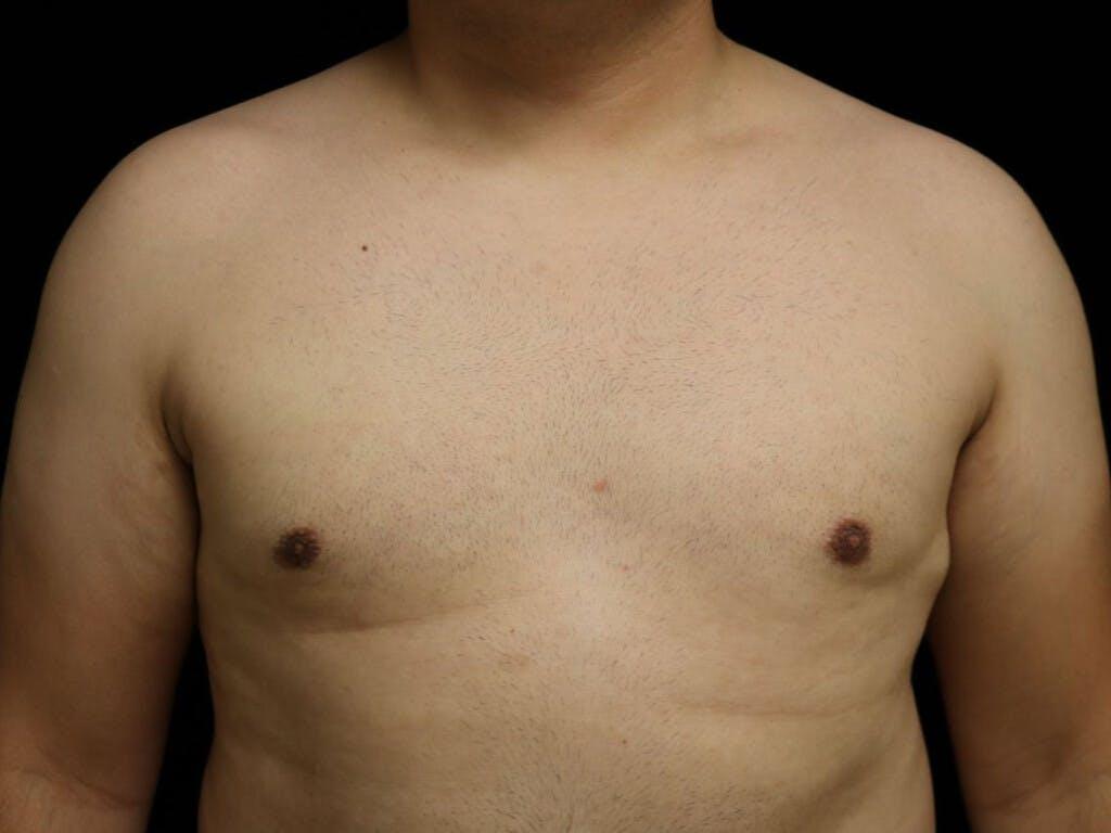 Gynecomastia Gallery - Patient 39352030 - Image 2