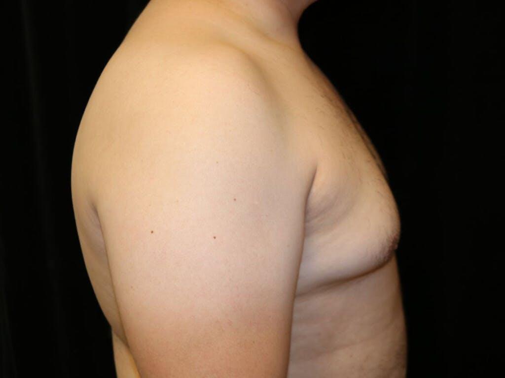 Gynecomastia Gallery - Patient 39352030 - Image 3