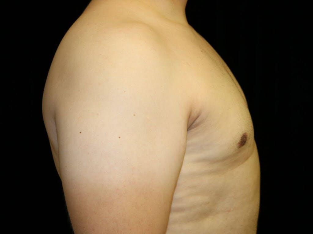 Gynecomastia Gallery - Patient 39352030 - Image 4