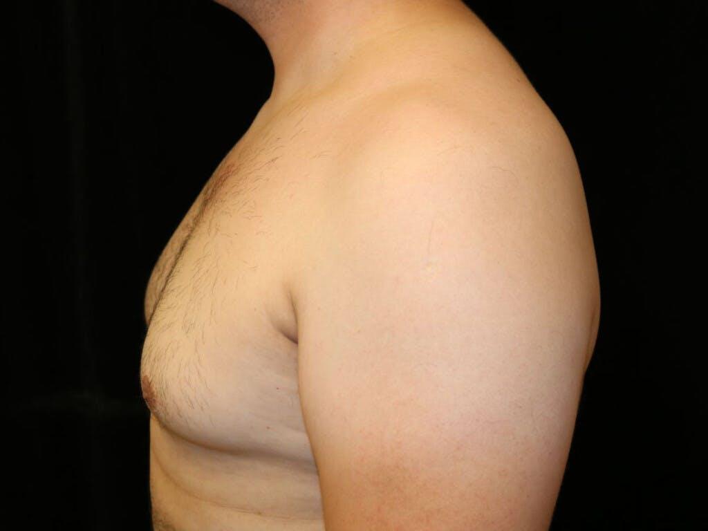 Gynecomastia Gallery - Patient 39352030 - Image 5