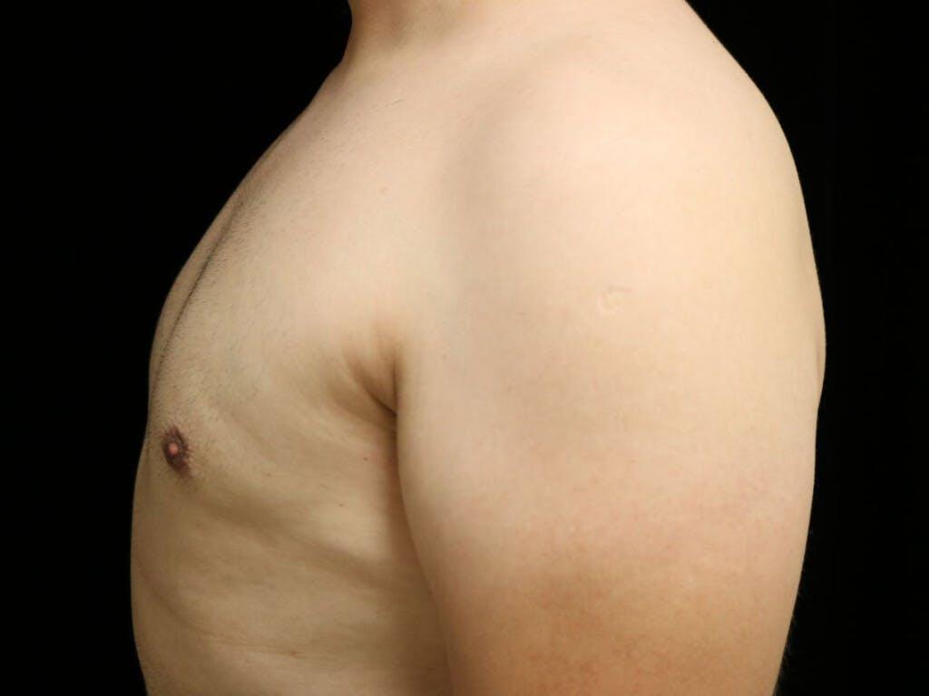 Gynecomastia Gallery - Patient 39352030 - Image 6