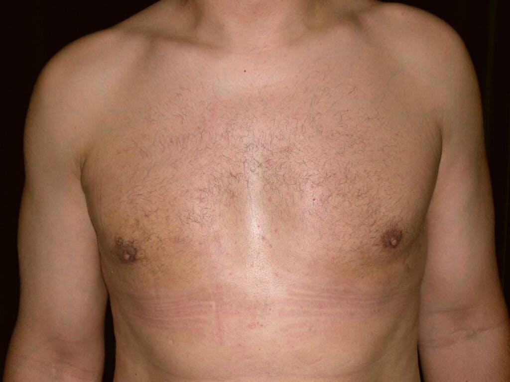 Gynecomastia Gallery - Patient 39352032 - Image 2