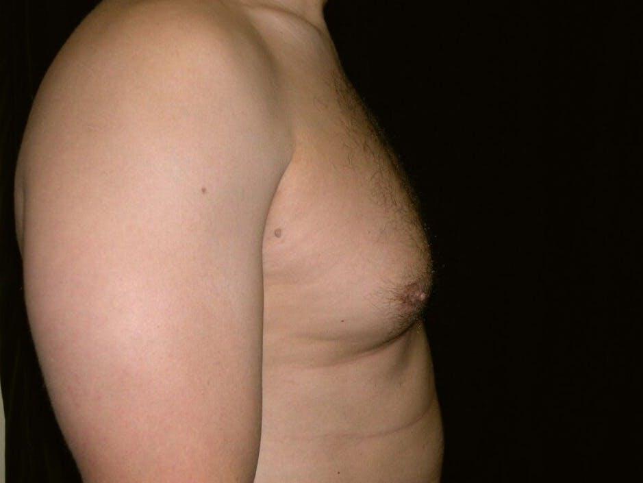 Gynecomastia Gallery - Patient 39352032 - Image 3