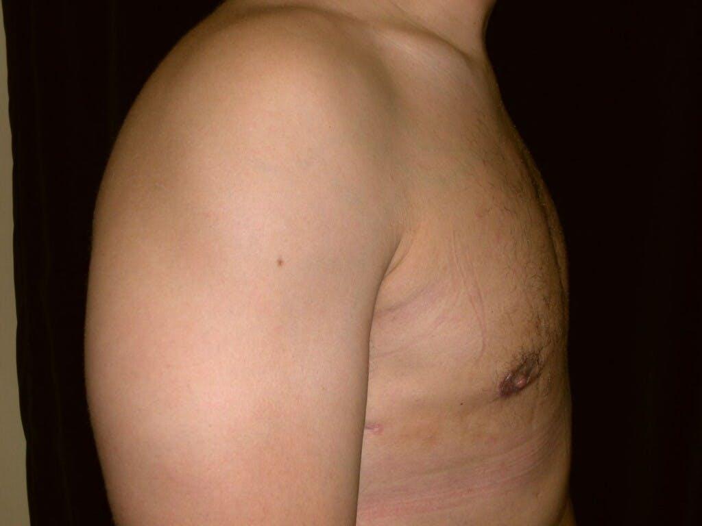 Gynecomastia Gallery - Patient 39352032 - Image 4