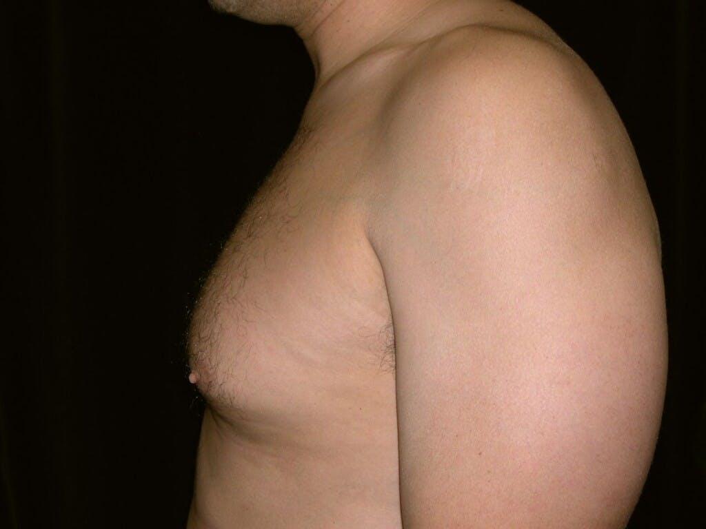 Gynecomastia Gallery - Patient 39352032 - Image 5