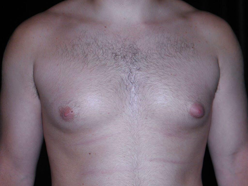 Gynecomastia Gallery - Patient 39352037 - Image 1