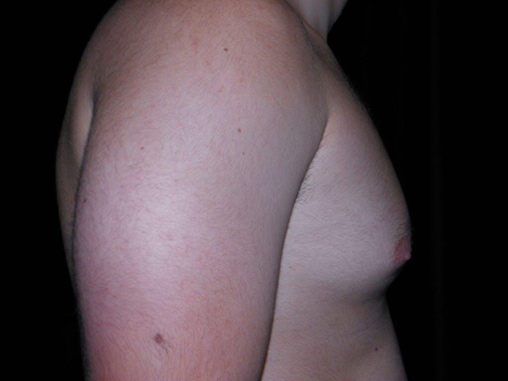 Gynecomastia Gallery - Patient 39352037 - Image 3