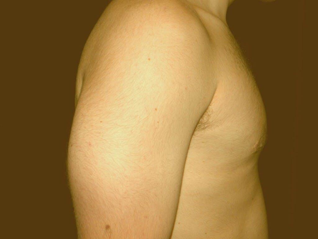 Gynecomastia Gallery - Patient 39352037 - Image 4