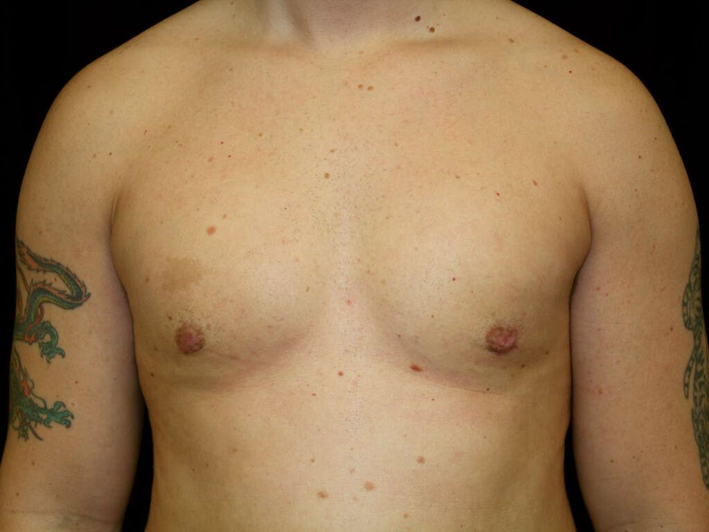 Gynecomastia Gallery - Patient 39352040 - Image 2