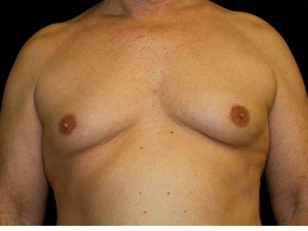 Gynecomastia Gallery - Patient 39352088 - Image 1